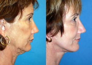 before and after pictures in Melbourne, FL, Patient 27849