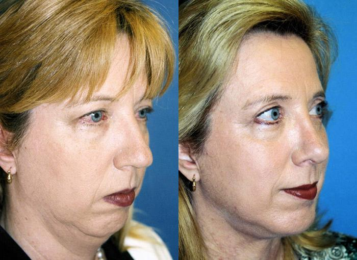 before and after pictures in Melbourne, FL, Patient 28219