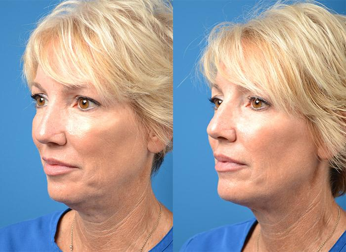 Kybella before and after pictures in Melbourne, FL, Patient 28309