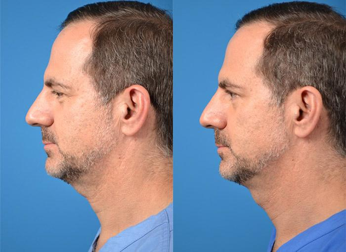 before and after pictures in Melbourne, FL, Patient 28320
