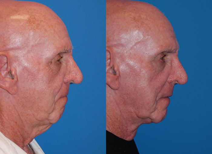 before and after pictures in Melbourne, FL, Patient 28323
