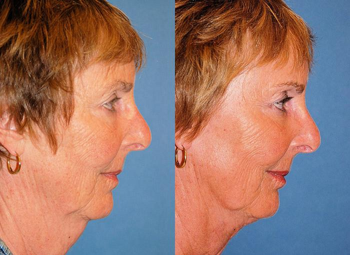 before and after pictures in Melbourne, FL, Patient 28428