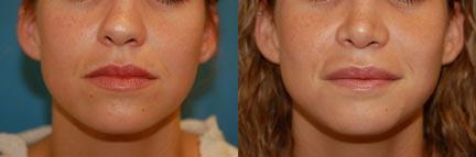 Lip Filler before and after pictures in Melbourne, FL, Patient 28605