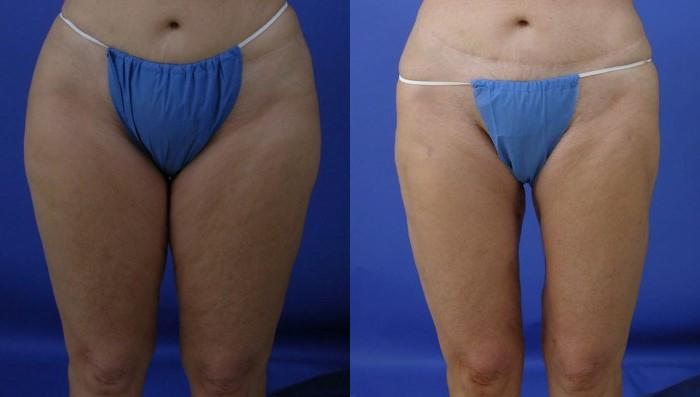 before and after pictures in Melbourne, FL, Patient 28732