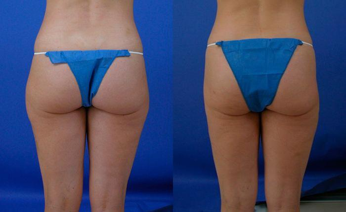 Liponique Body Contouring before and after pictures in Melbourne, FL, Patient 28740