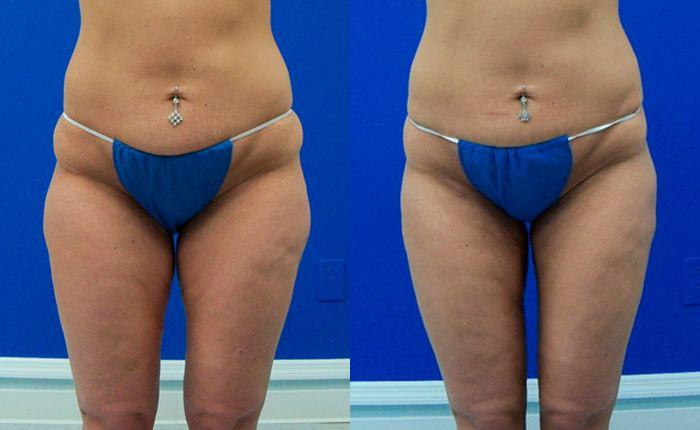 before and after pictures in Melbourne, FL, Patient 28753