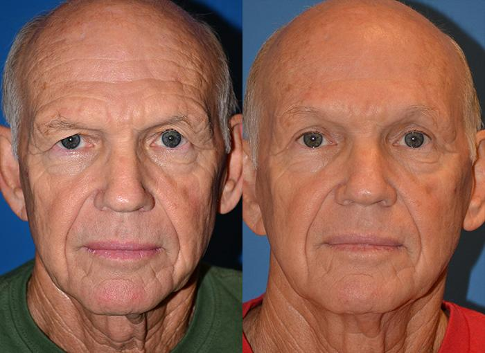 before and after pictures in Melbourne, FL, Patient 28764