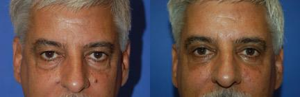 Male Eyelid Surgery before and after pictures in Melbourne, FL, Patient 28783
