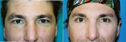 before and after pictures in Melbourne, FL, Patient 28797