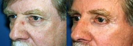 before and after pictures in Melbourne, FL, Patient 28808