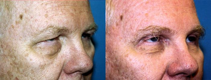 before and after pictures in Melbourne, FL, Patient 28826
