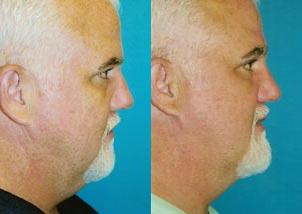 Male Neck Lift before and after pictures in Melbourne, FL, Patient 29210