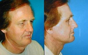 before and after pictures in Melbourne, FL, Patient 29328