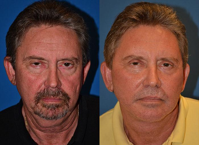 before and after pictures in Melbourne, FL, Patient 29352