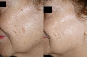 Skin Resurfacing before and after pictures in Melbourne, FL, Patient 30014
