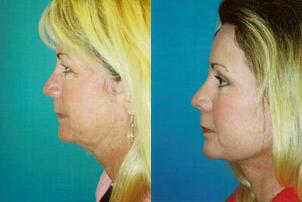 Skin Resurfacing before and after pictures in Melbourne, FL, Patient 30214