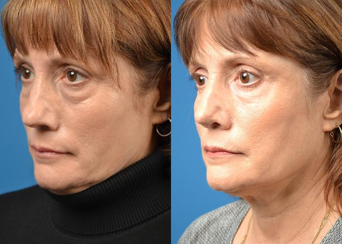 Skin Resurfacing before and after pictures in Melbourne, FL, Patient 30350