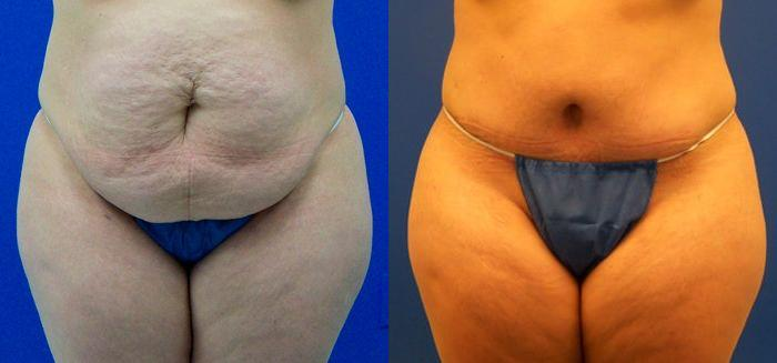 before and after pictures in Melbourne, FL, Patient 30441