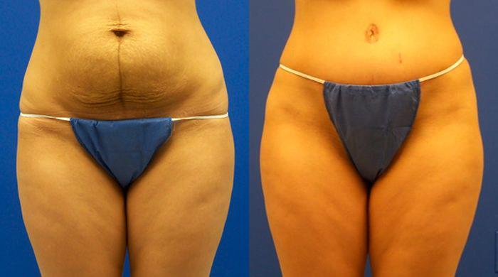 before and after pictures in Melbourne, FL, Patient 30451