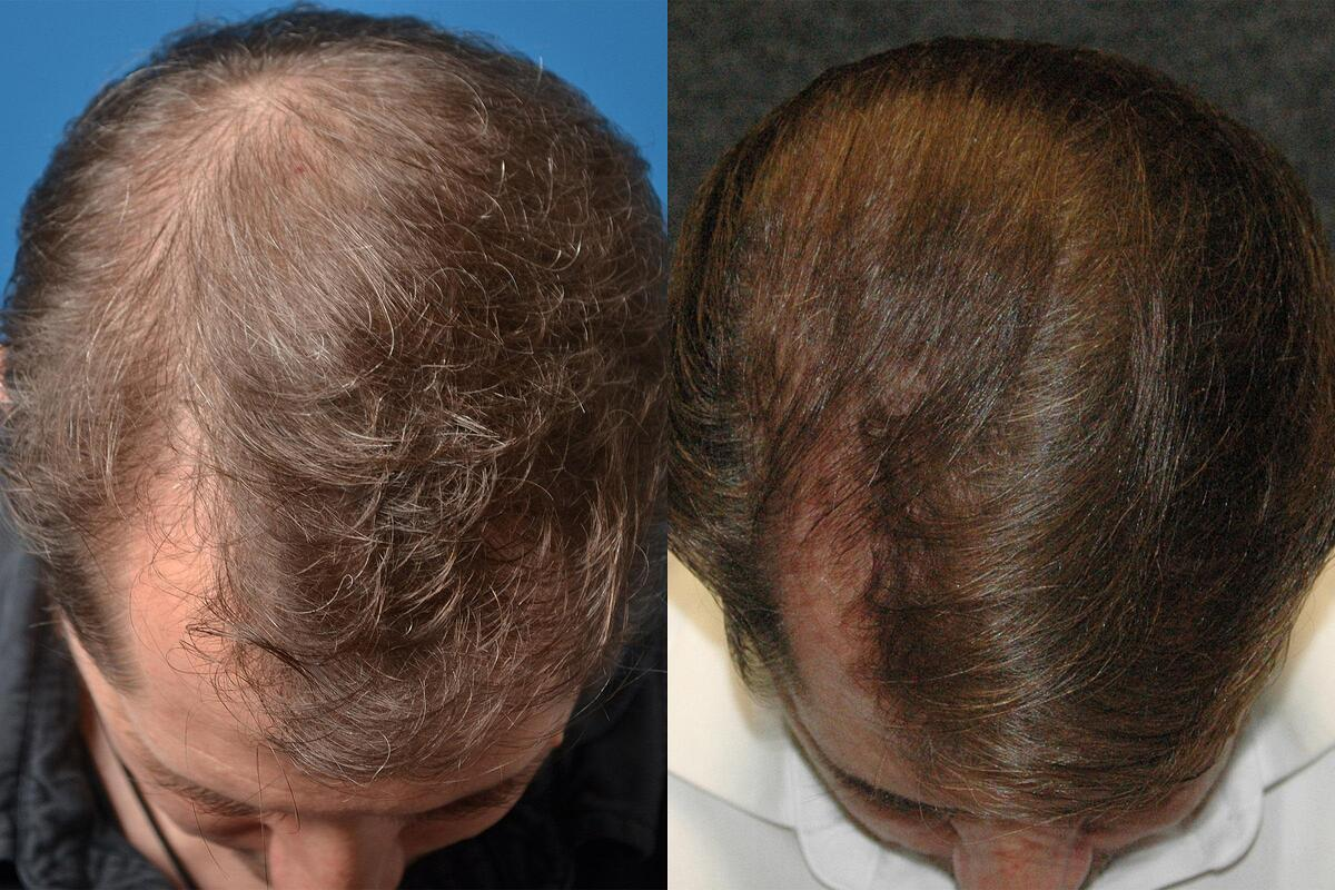 before and after pictures in Melbourne, FL, Patient 52059