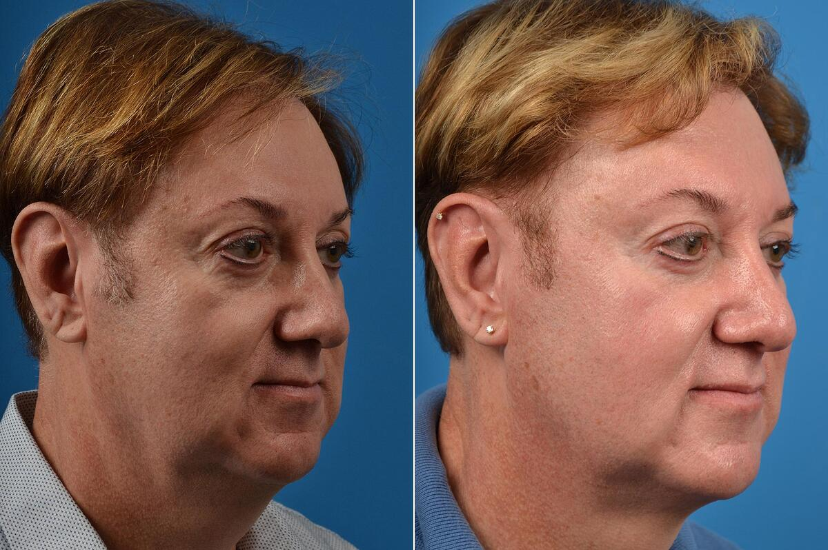 before and after pictures in Melbourne, FL, Patient 52119