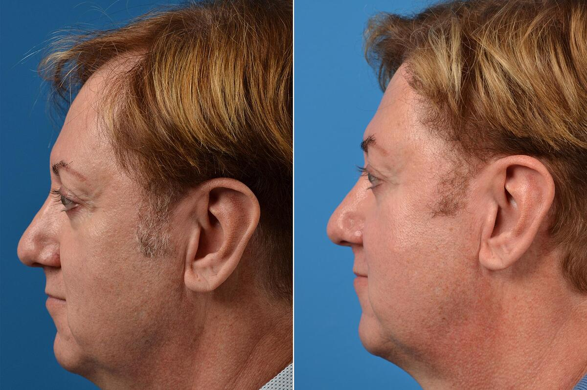 Hair Restoration before and after pictures in Melbourne, FL, Patient 52119