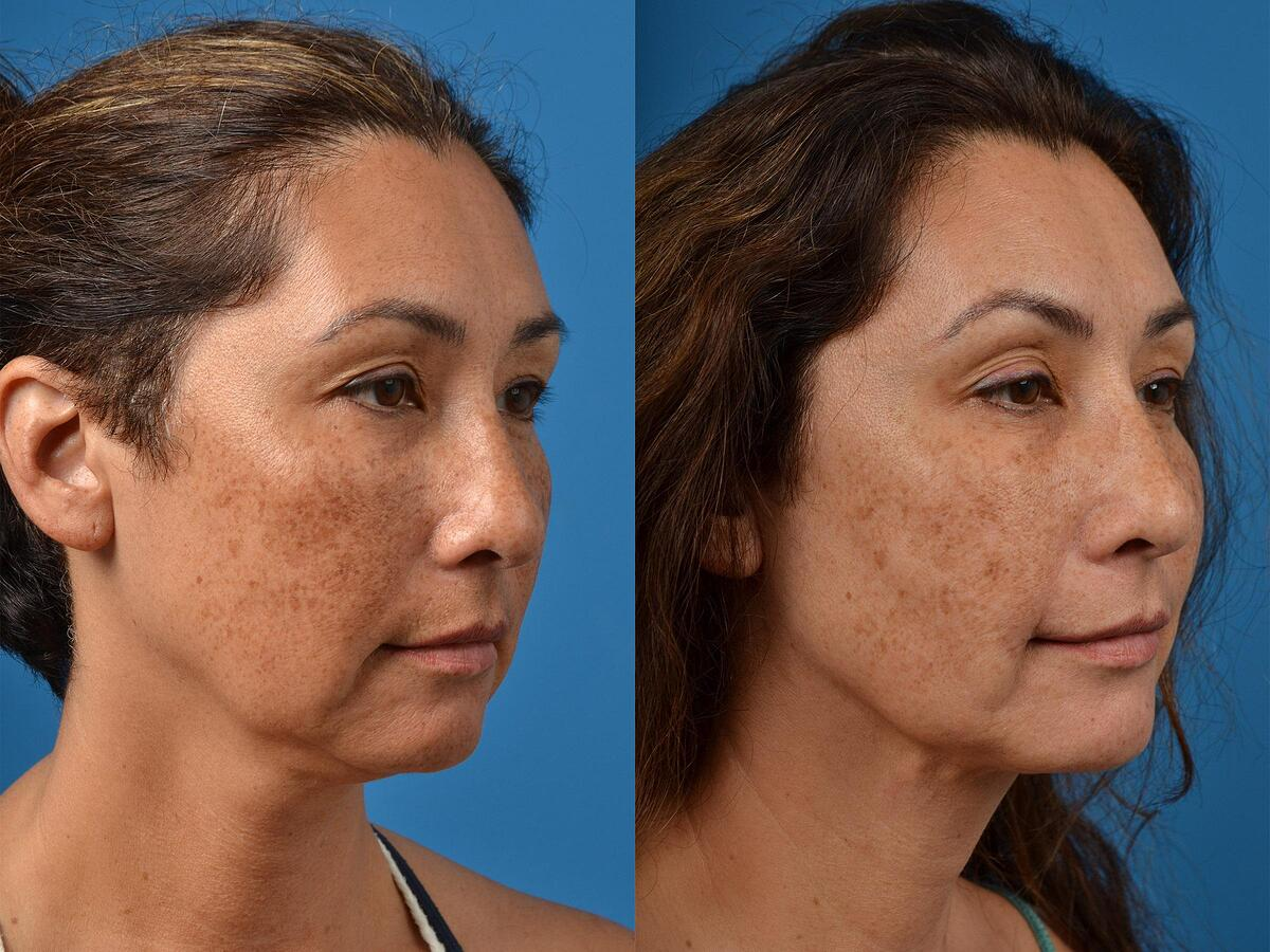 before and after pictures in Melbourne, FL, Patient 53359