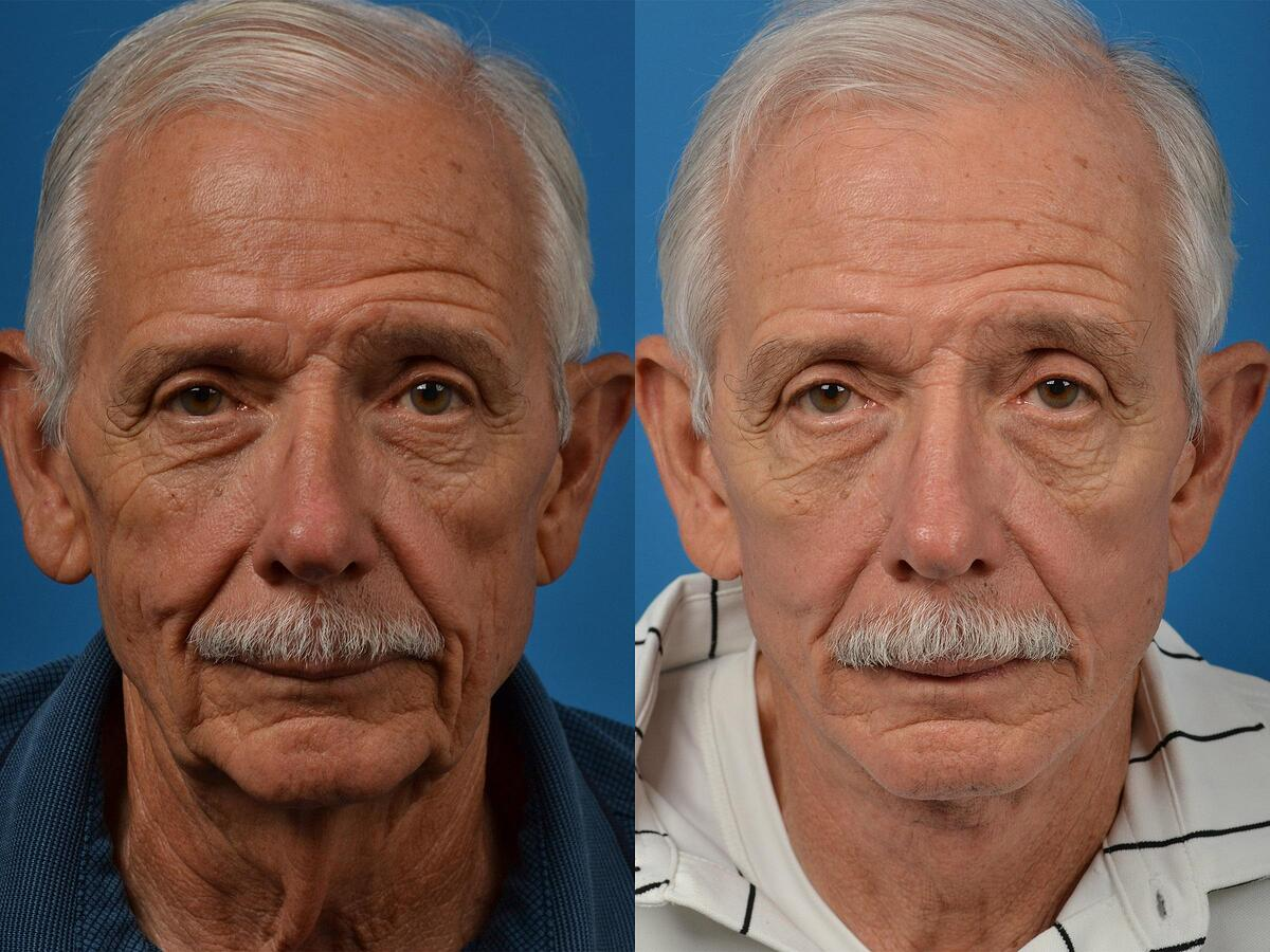 before and after pictures in Melbourne, FL, Patient 53697