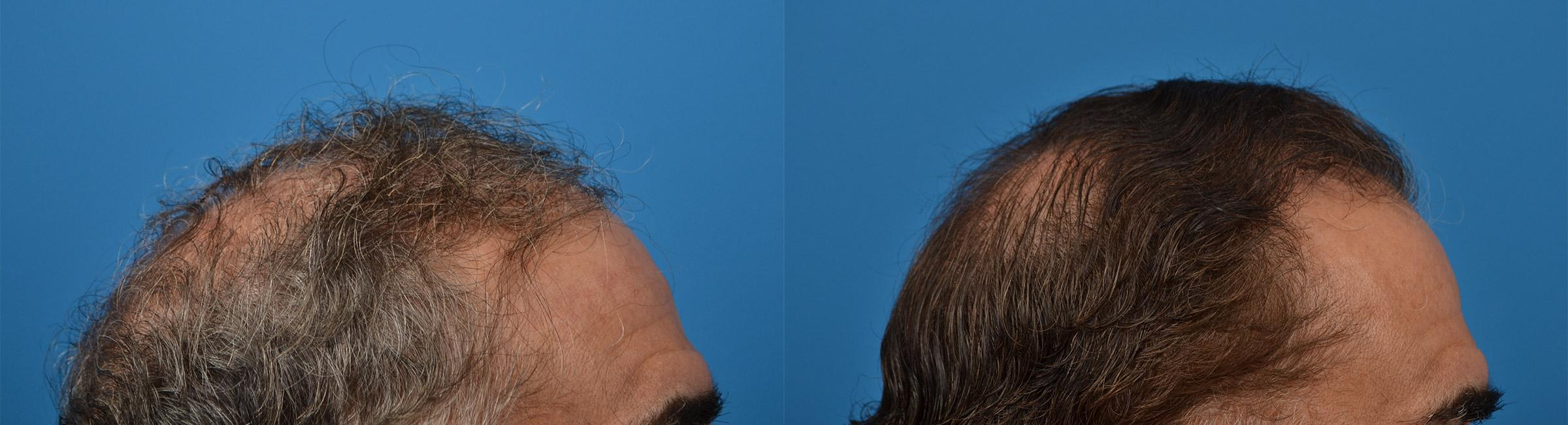 Hair Restoration before and after pictures in Melbourne, FL, Patient 53714