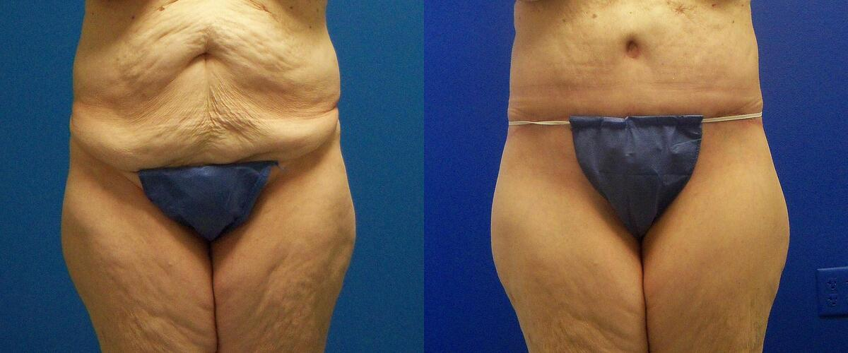 before and after pictures in Melbourne, FL, Patient 54659