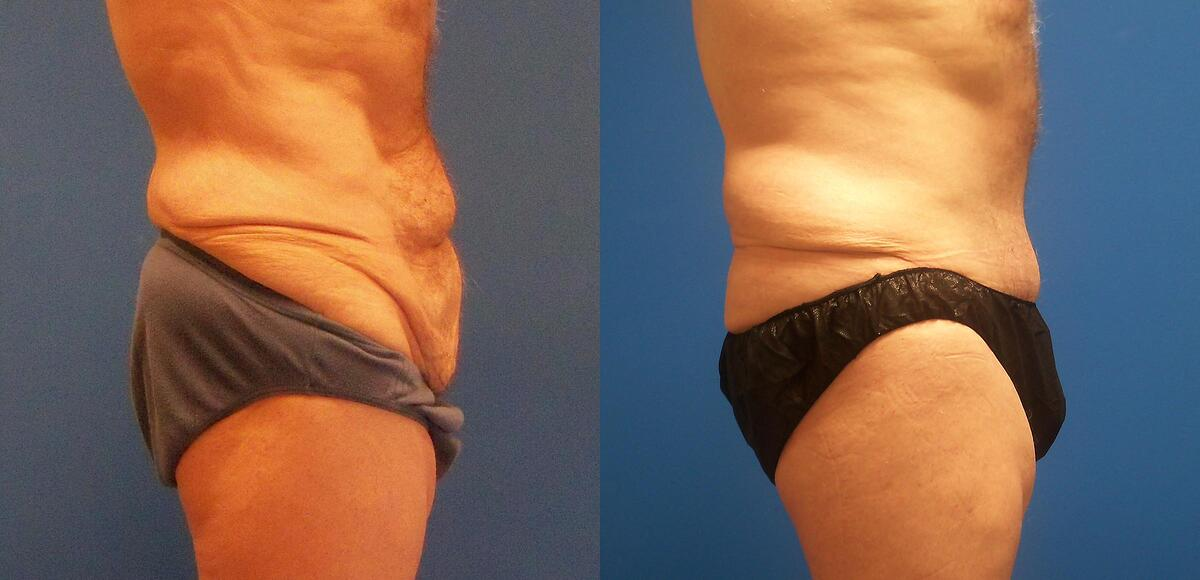 before and after pictures in Melbourne, FL, Patient 54674