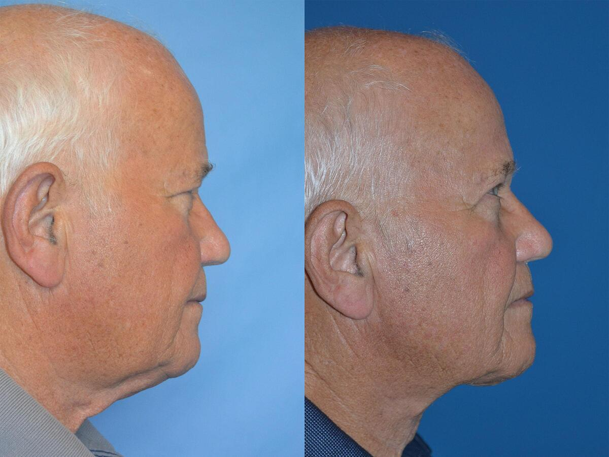 Neck Lift before and after pictures in Melbourne, FL, Patient 56546