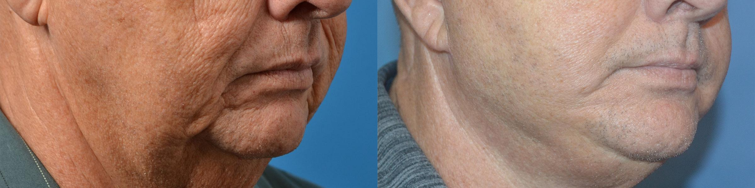 before and after pictures in Melbourne, FL, Patient 56624