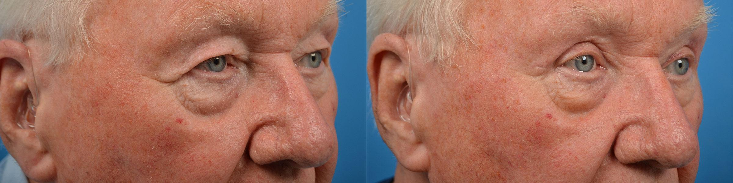 before and after pictures in Melbourne, FL, Patient 56668