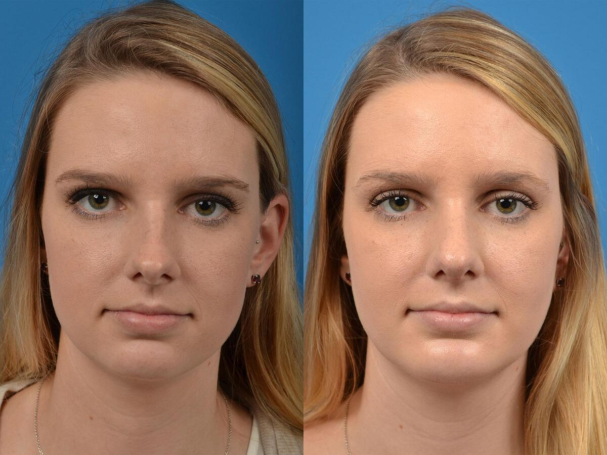 before and after pictures in Melbourne, FL, Patient 56770