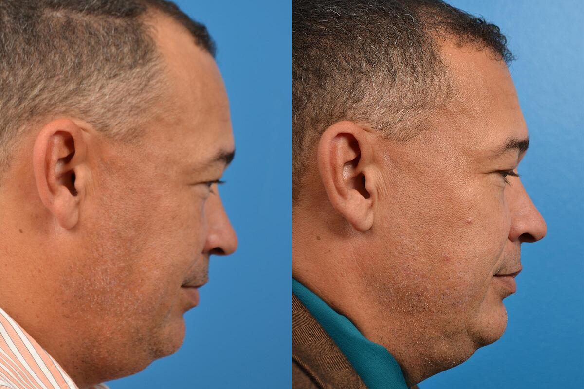 Hair Restoration before and after pictures in Melbourne, FL, Patient 57493