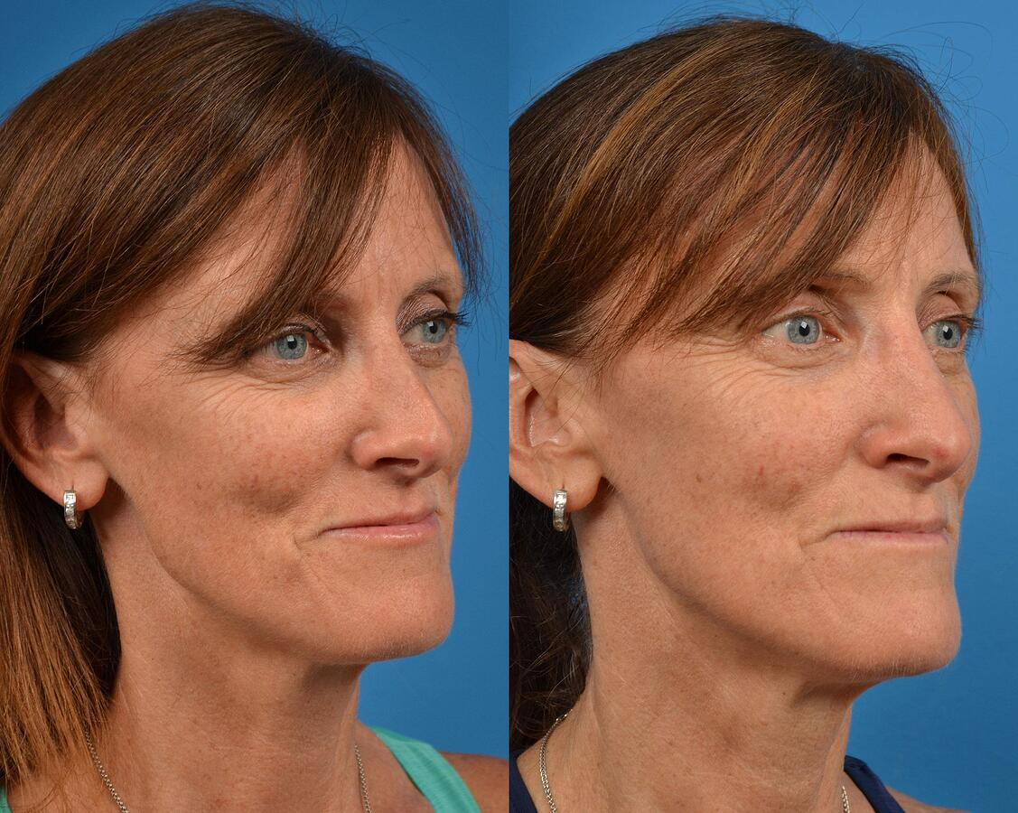 before and after pictures in Melbourne, FL, Patient 57777