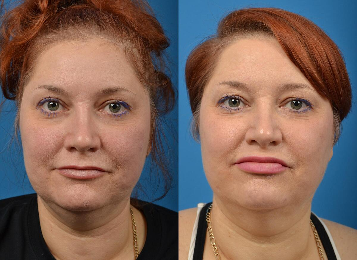 before and after pictures in Melbourne, FL, Patient 58553