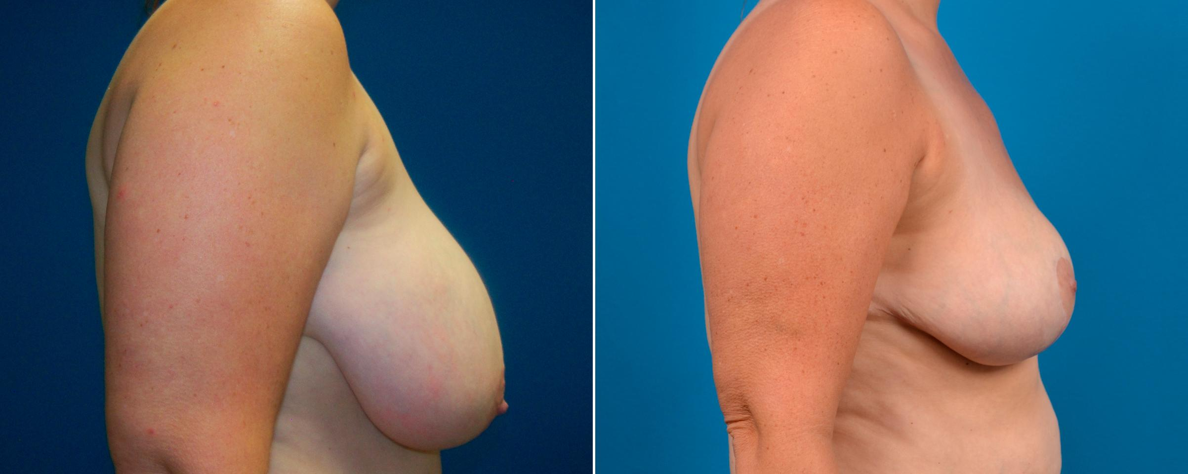 Breast Reduction before and after pictures in Melbourne, FL, Patient 59045