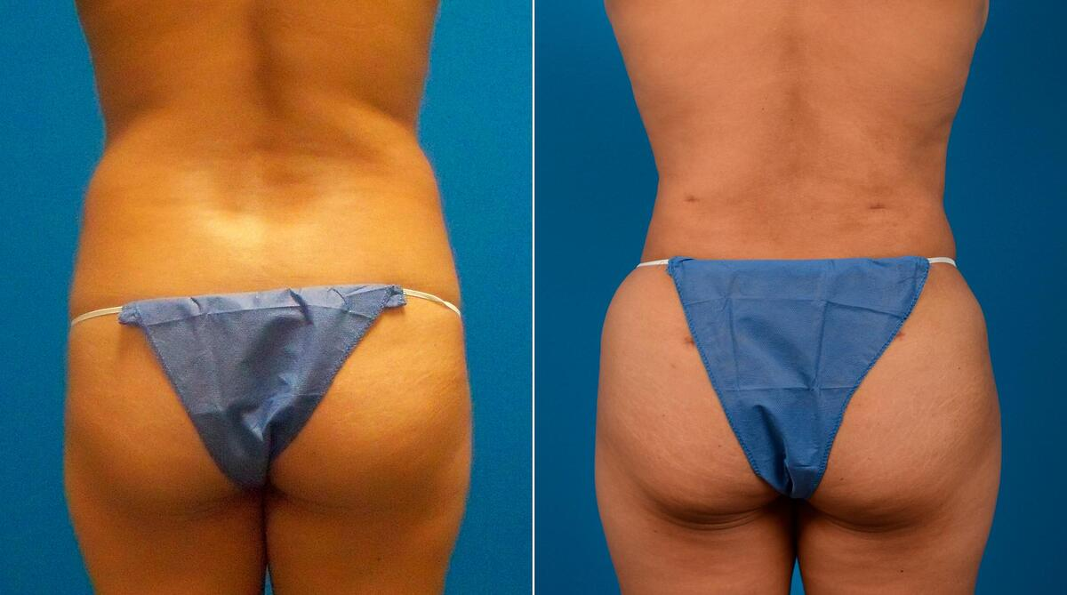 before and after pictures in Melbourne, FL, Patient 59085