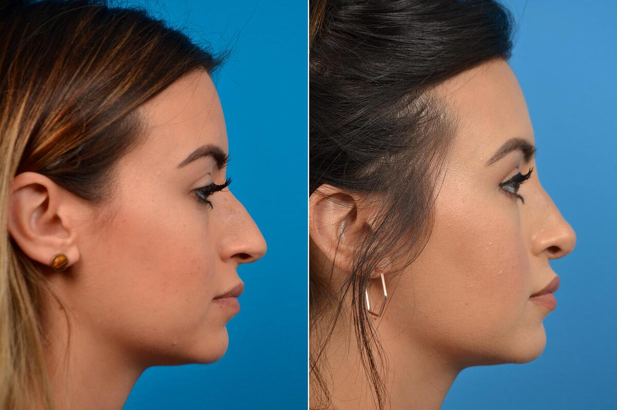 before and after pictures in Melbourne, FL, Patient 60352