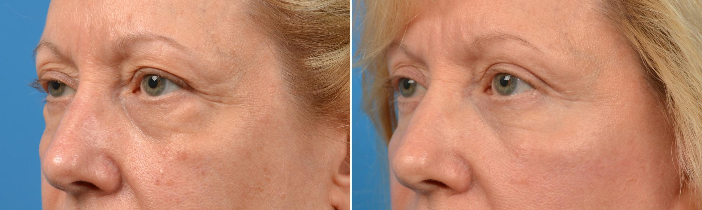 Eyelid Surgery before and after pictures in Melbourne, FL, Patient 60465