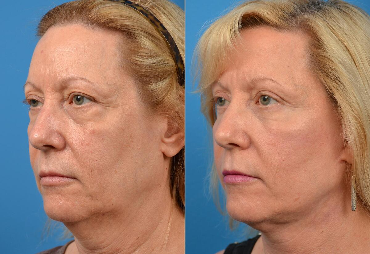 Facelift before and after pictures in Melbourne, FL, Patient 60482