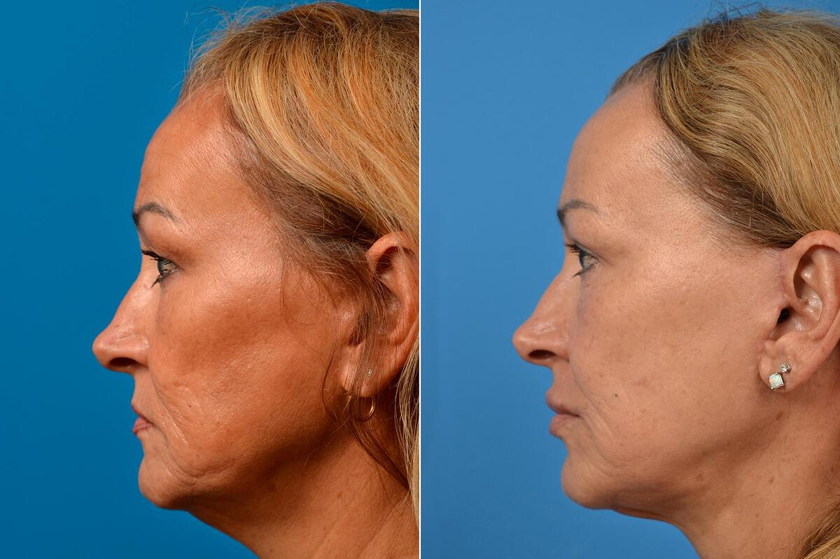 Facelift before and after pictures in Melbourne, FL, Patient 60516
