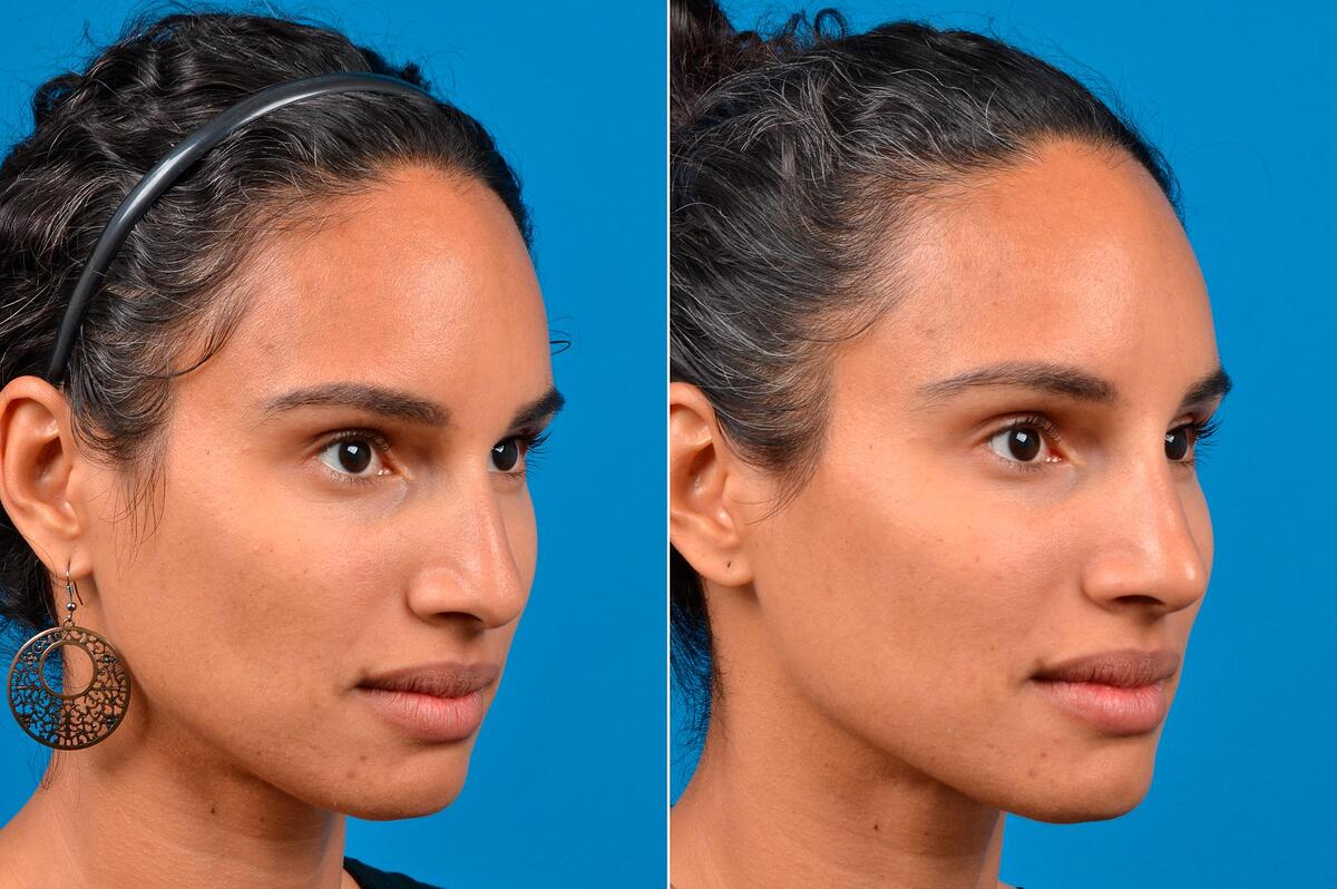 Liquid Rhinoplasty before and after pictures in Melbourne, FL, Patient 60623