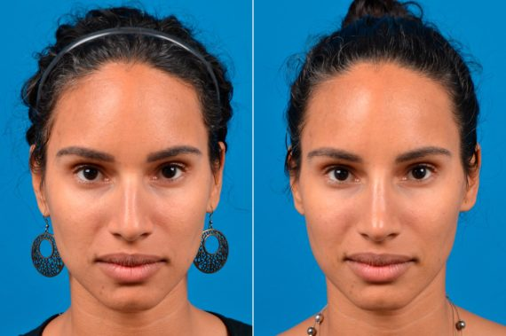 liquid-rhinoplasty-before-after-5-570x379