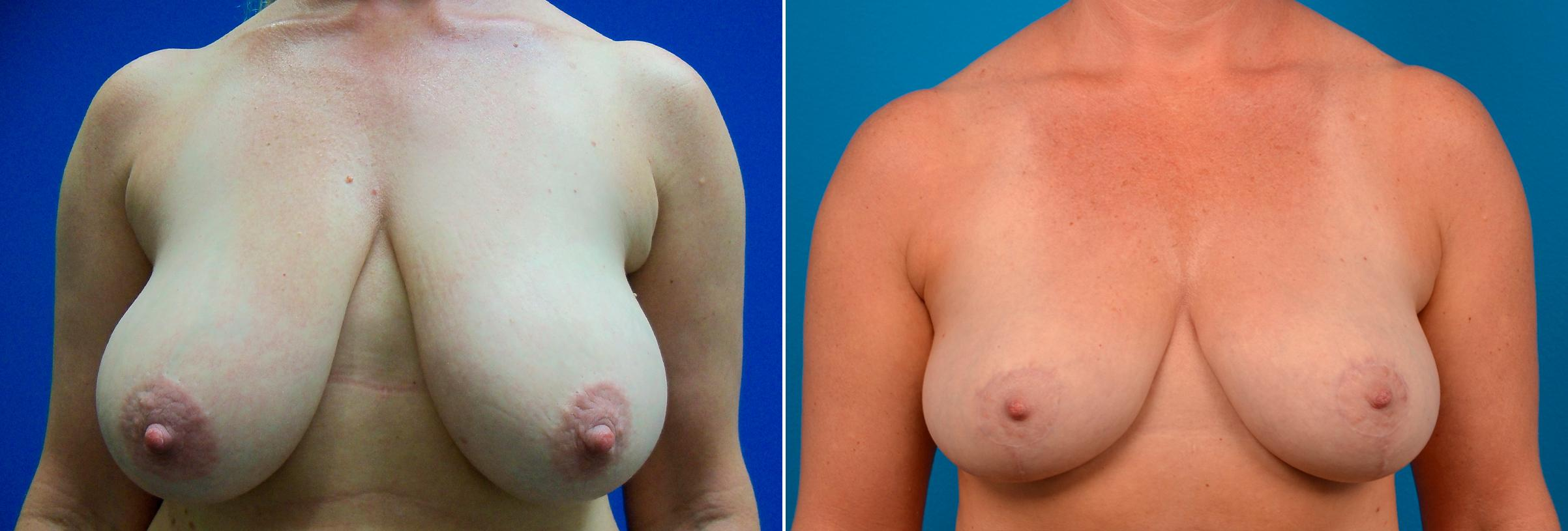 pt-15099-breast-reduction-before-after