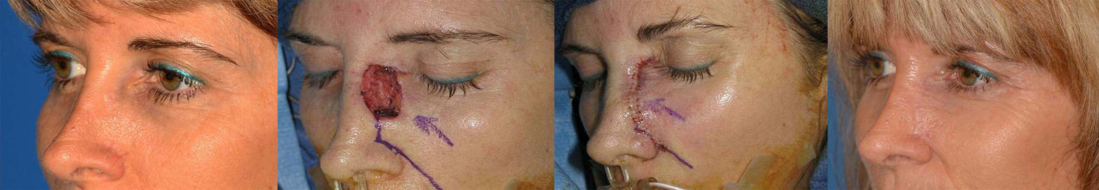 Mohs Surgery and Skin Cancer